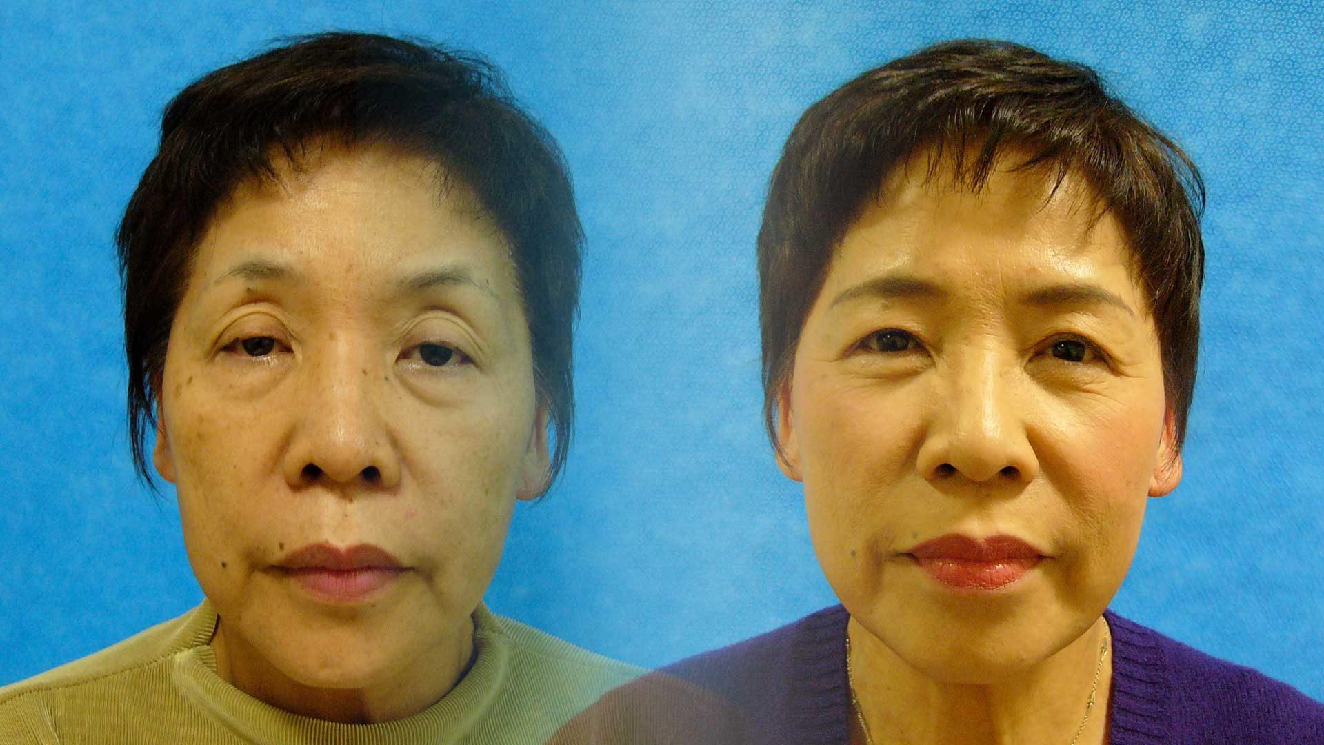 眠たそうに見られがちな目元を改善する治療が保険適用で受診することができます。